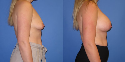 Photo of woman before and after breast augmentation.