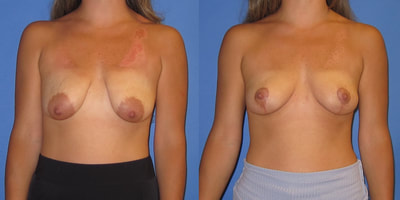 Photo of a woman before and after breast lift surgery.