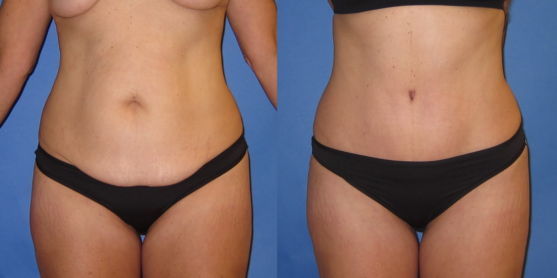 Tummy Tuck Before And After Photos Portland Plastic Surgery Cosmetic Plastic Surgery