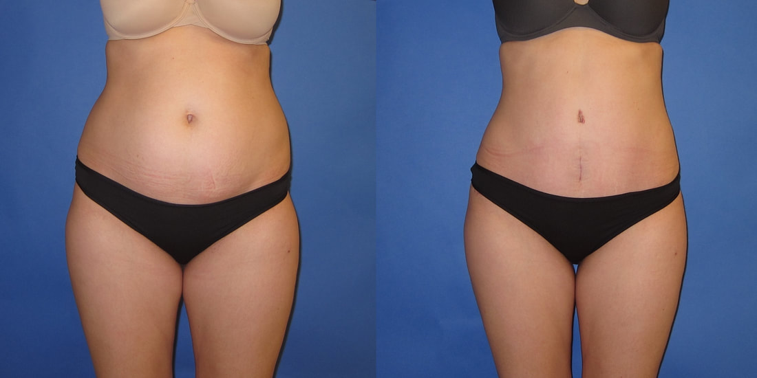 Tummy Tuck Portland Oregon Abdominoplasty Surgery