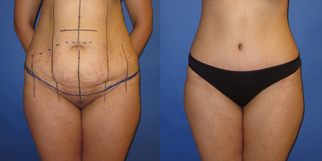 Young woman after tummy tuck and scar revision.