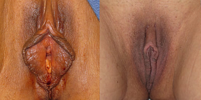 Photo before and after labiaplasty surgery.