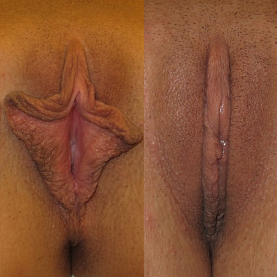 Labiaplasty and clitoral hood reduction before and after photos