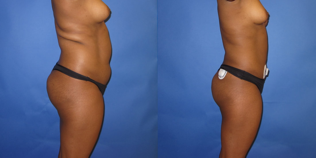 Liposuction Before And After Photos Portland Plastic Surgery Cosmetic Plastic Surgery