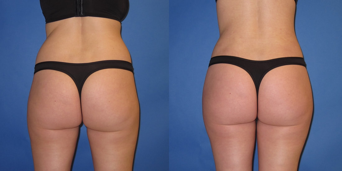 Liposuction Portland Hillsboro Oregon Liposculpture