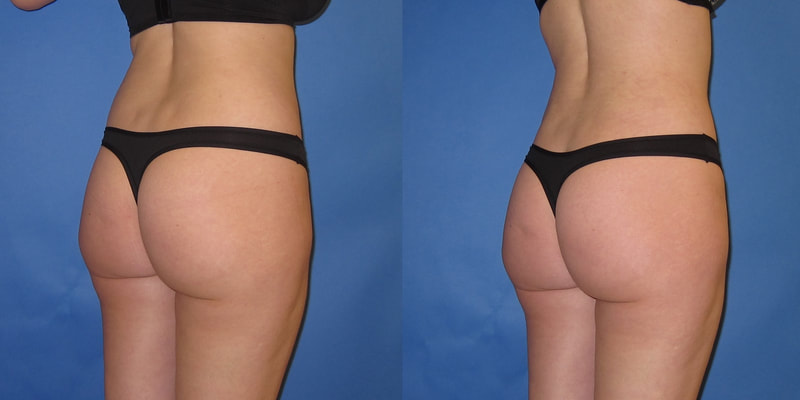Photo of a woman before and after liposuction.