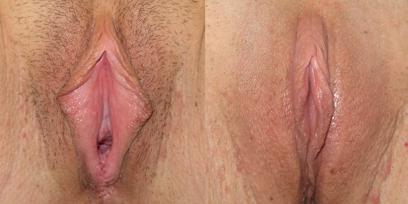 Photo of a woman before and after labiaplasty.