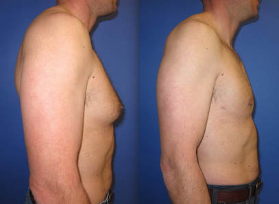 Before and after photo of breast augmentation.